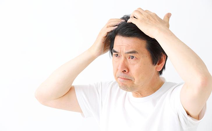 プロペシアの薄毛改善効果と副作用について